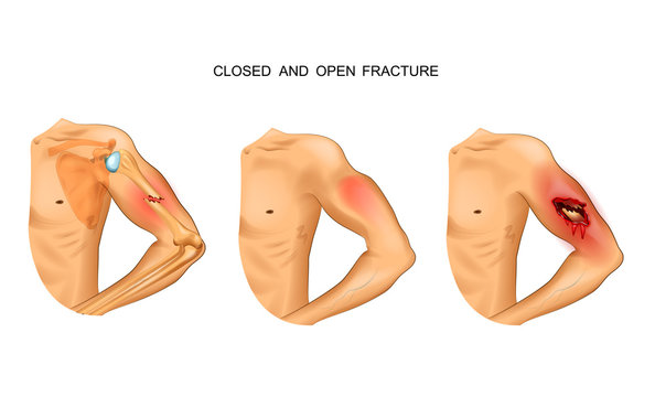 open and closed fracture