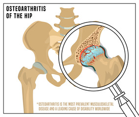 Hip Osteoarthritis Image