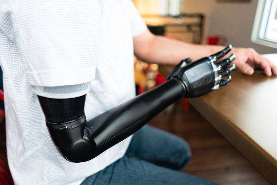 Man with a robotic arm sits at a table