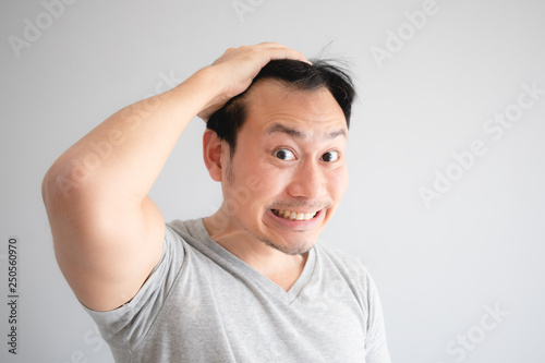 Shocked face of Asian man find himself lost hair and get