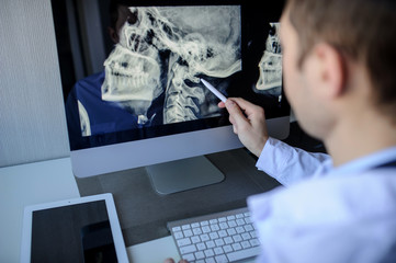 back view of a male radiologist examining neck x-rays (cervical vertebrae) on computer