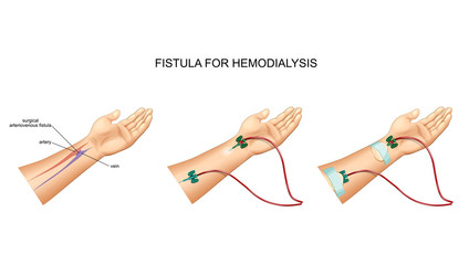 intravenous catheter, hemodialysis and fistula
