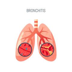 Bronchitis disease vector icon in flat style