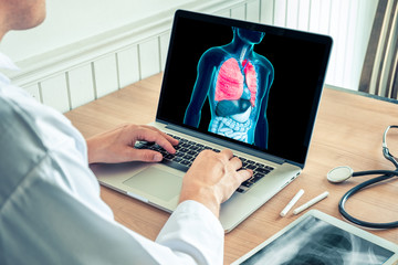 Doctor working with x-ray of lungs on a laptop. Cancer of lungs and cigarette prevention