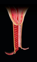 Atrophic vaginitis is inflammation of the vagina as a result of tissue thinning due to not enough estrogen. After menopause the vaginal epithelium changes and becomes a few layers thick. Genitourinary