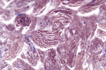 Human squamous cell carcinoma. Tissues affected by cancer cells under a microscope