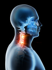 3d rendered illustration of a mans painful neck