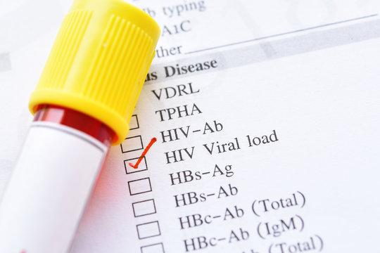 Blood sample for HIV RNA or HIV viral load test