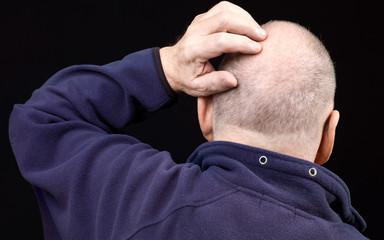 portrait homme de dos avec calvitie sur fond noir