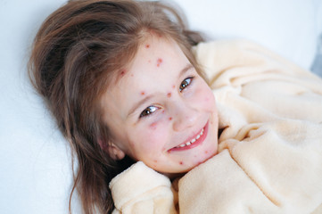 Closeup of cute smiles funny little girl in bed. Varicella virus or Chickenpox bubble rash on child