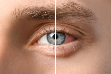 Obraz Young man with blue eyes, closeup - fototapety do salonu