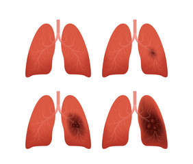 lung cancer stages vector / tumor