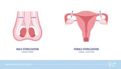 Male and female sterilization