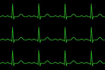 Ekg lines. Heartbeat. Seamless pattern.