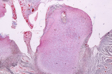 Study Histology of human, tissue bone under the microscopic in laboratory.
