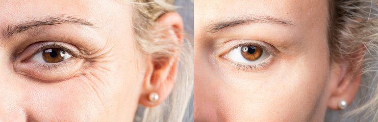 Female eyes with and without eye bag before and after cosmetic treatment