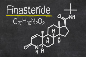 Blackboard with the chemical formula of Finasteride