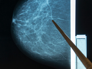 Mammography. The doctor examines pictures of a patient with fibroadenomatosis.