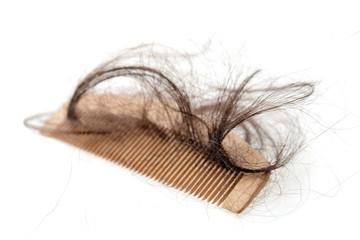 Hair loss problem.