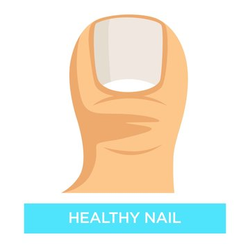 Healthy nail toenail fungus infection prevention medicine and healthcare