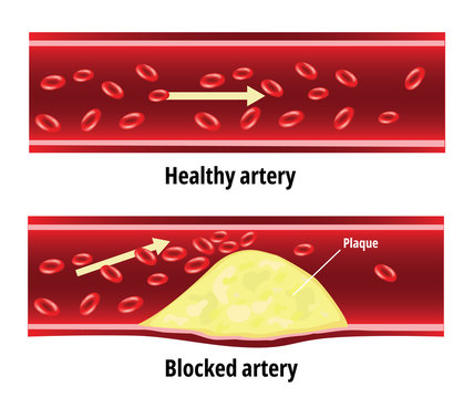 Blocked artery, fat stuck in the blood artery, cholesterol