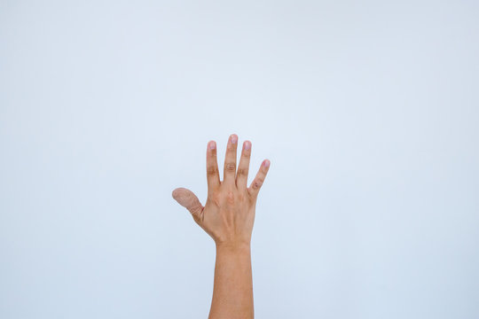 Injured painful finger with white bandage. Hand has been injured by the accident and showing thumb up.The thumb is wrapped with a bandage, which is first aid on a white background.