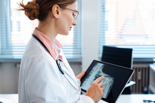 Doctor looking at x-ray picture of a shoulder on her tablet computer