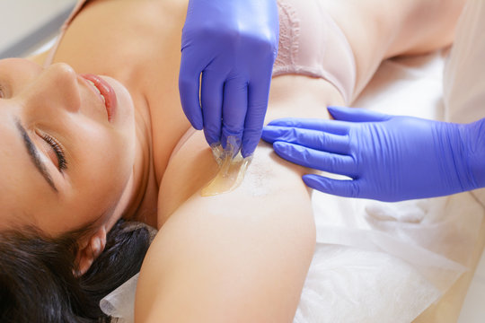 Master of sugaring making hair removal procedure for woman. Summer season vacation preparation. Epilation with liquate sugar paste. Treatment In Cosmetic Beauty Clinic. Beautician waxing female armpit