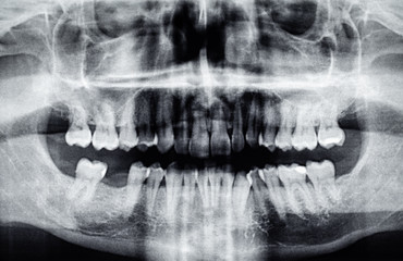 Panoramic dental X-Ray with one back tooth hole