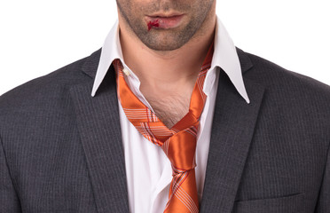 Close up of a businessman with bloody lip, beaten and bruised