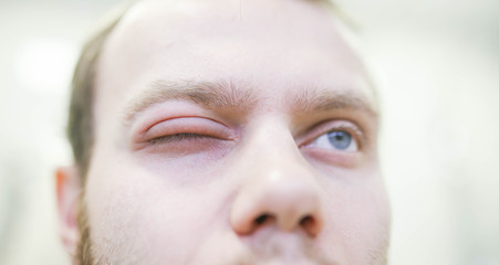 Allergic reaction to the eye of a young man. Angioedema