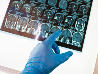 Doctor pointing on x-ray image of brain