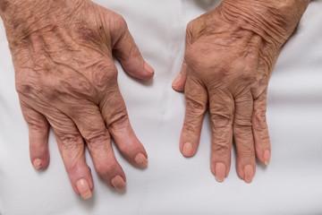 Rheumatoid Arthritis on female hands