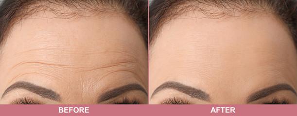 Beautiful older woman, closeup of forehead