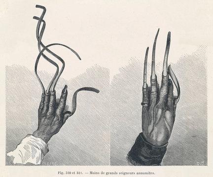 Overgrown Fingernails