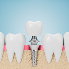 Teeth with implant screw, blue background