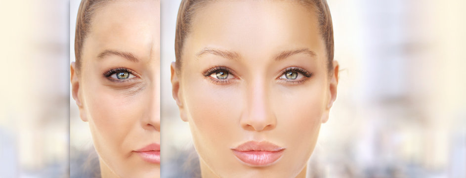 Aging. Mature woman-young woman.Face with skin problem.Showing photos before and after