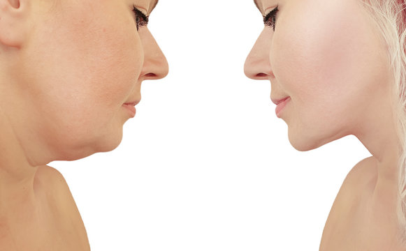 woman double chin before and after