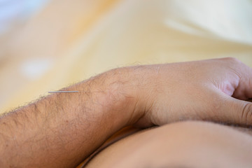 close up detail of hands appling acupuncture needles