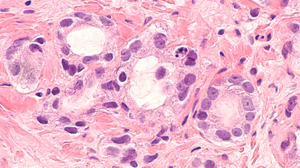 Cancer of the prostate: microscopic image of prostatic adenocarcinoma, with small infiltrating glands having cells with large nuclei and prominent nucleoli.  PSA testing may lead to early detection.