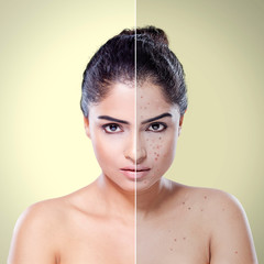 Young woman before and after skin care
