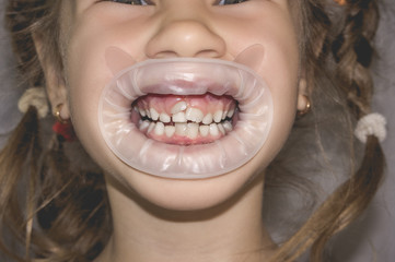 Adult permanent teeth coming in front of the child's baby teeth: shark teeth.
