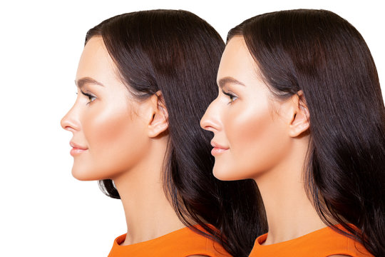Comparison of Female nose after plastic surgery. portrait of beautiful caucasian young woman in profile is isolated on white background - Image