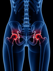 3d rendered medically accurate illustration of a painful hip joint