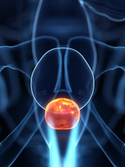 3d rendered medically accurate illustration of an inflamed prostate