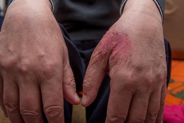 Burned injury hand