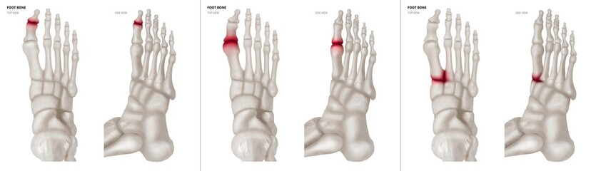 Collection Arthritis in Big toe joint foot bone red highlights on different pain area- Anterior and Lateral view- 3D medical and Biomedical illustration- Medical Concept- Isolated white background.