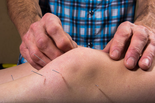 Dry Needling At The Physical Therapy Clinic - Pain Relief and Healing