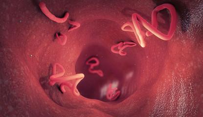 Tapeworm infestation in a human intestine - 3d illustration