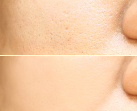 Compare before and after (retouch photo) of close up wide large pores skin on oily face have pimple of asia woman effect after use cream or treatment for facial care face skin to better